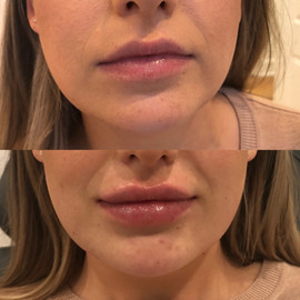 Lip Filler Injections