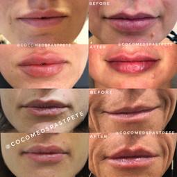 Lip Filler Injection