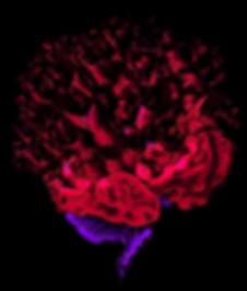 Shattr Brain