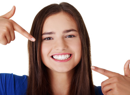 Beaming White Smiles Process!