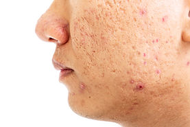close-up-problematic-skin-with-deep-acne