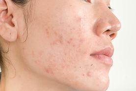 scar-from-acne-face.jpg