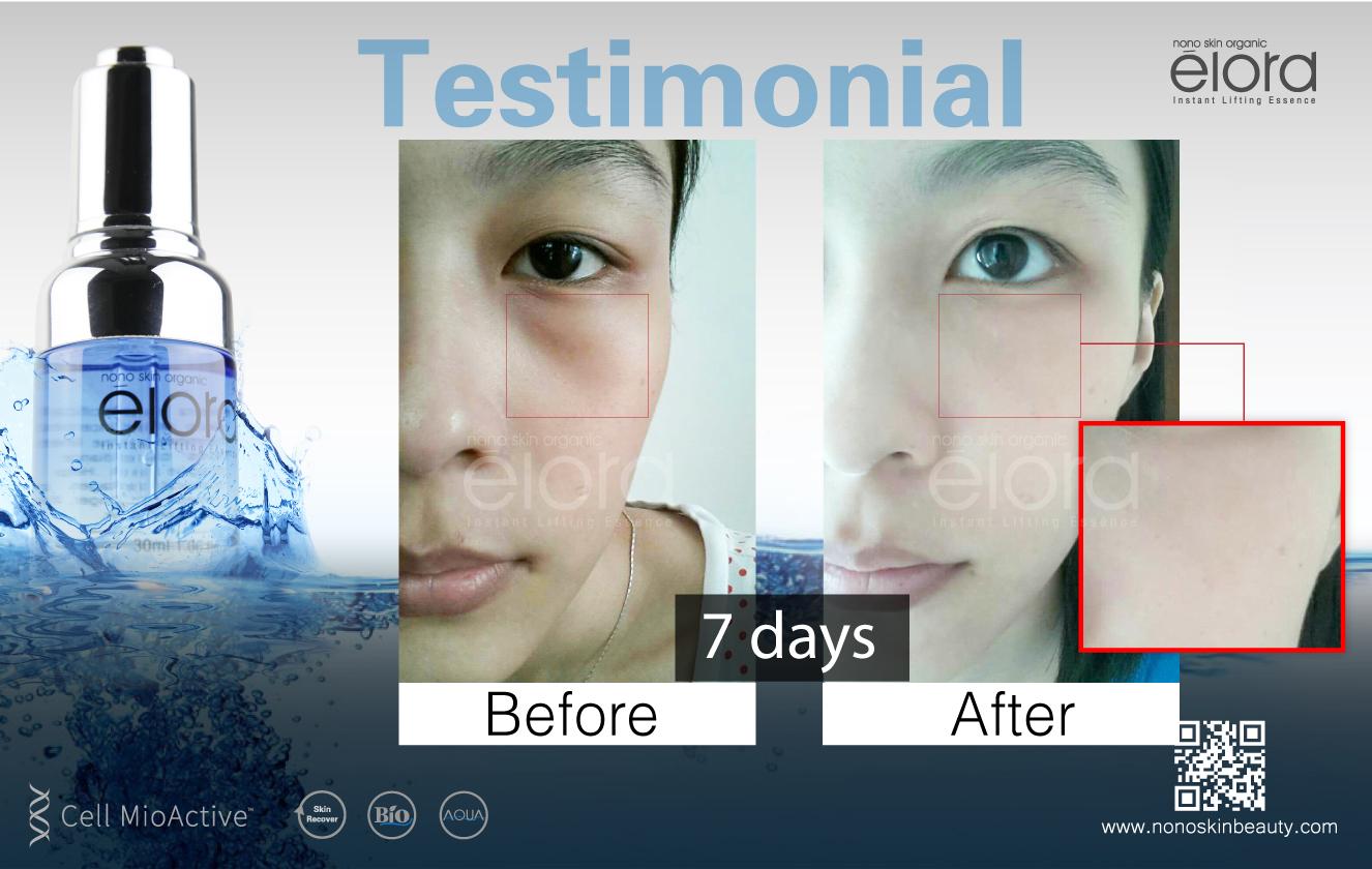 elora product testimonial-02
