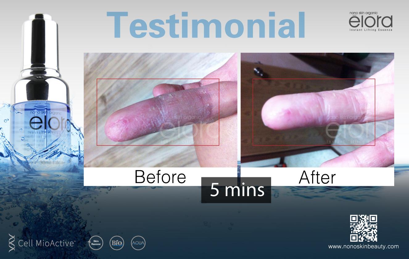 elora product testimonial-03