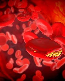 cholesterol-plaque-blood-vessel.jpg