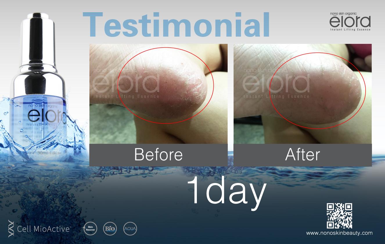 elora product testimonial-05