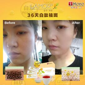 35天白肽祛斑效果