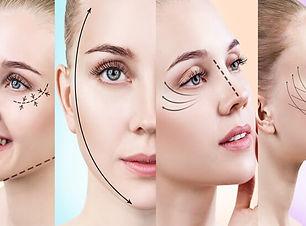 facelift-surgery.jpg