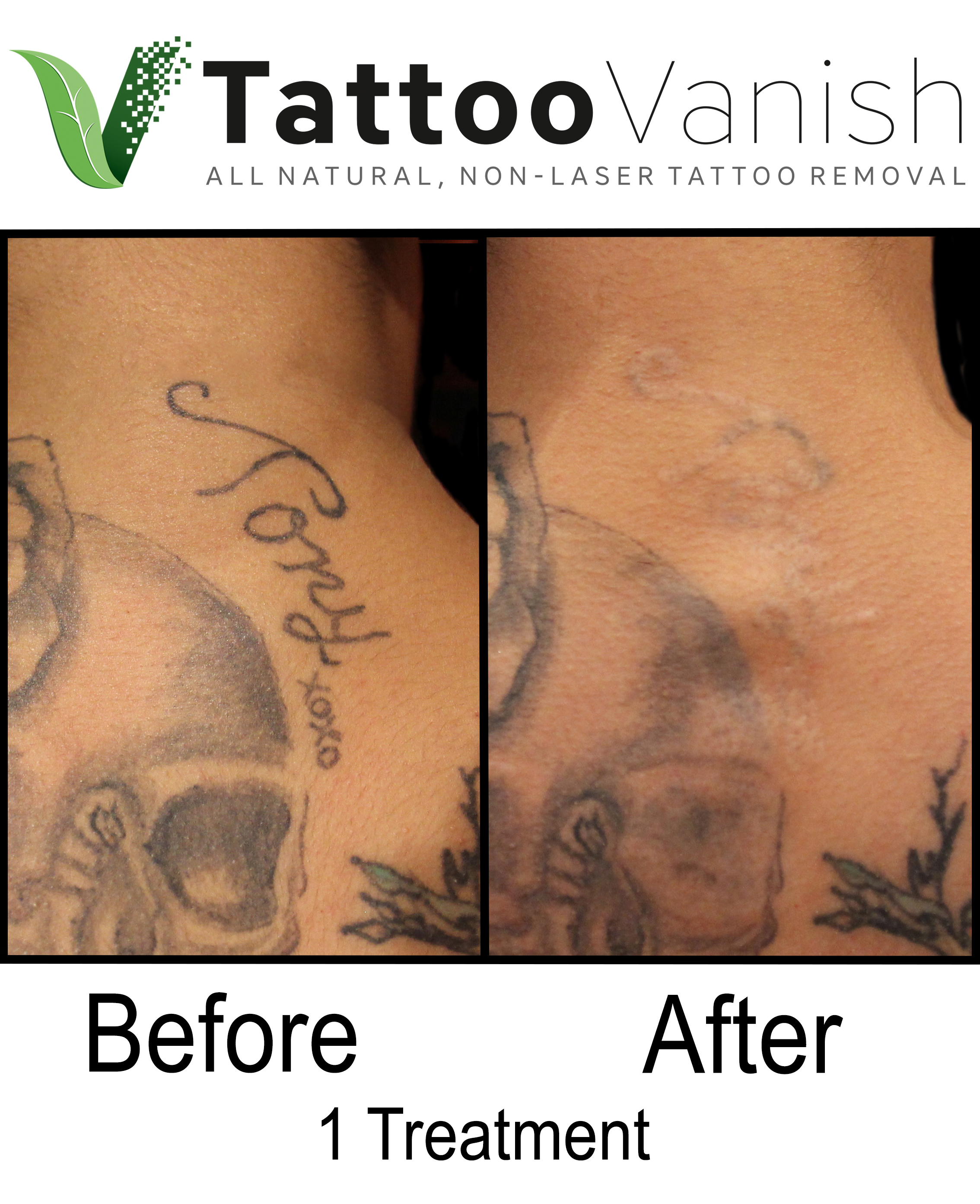 Best Tattoo Removal in Miami (36)