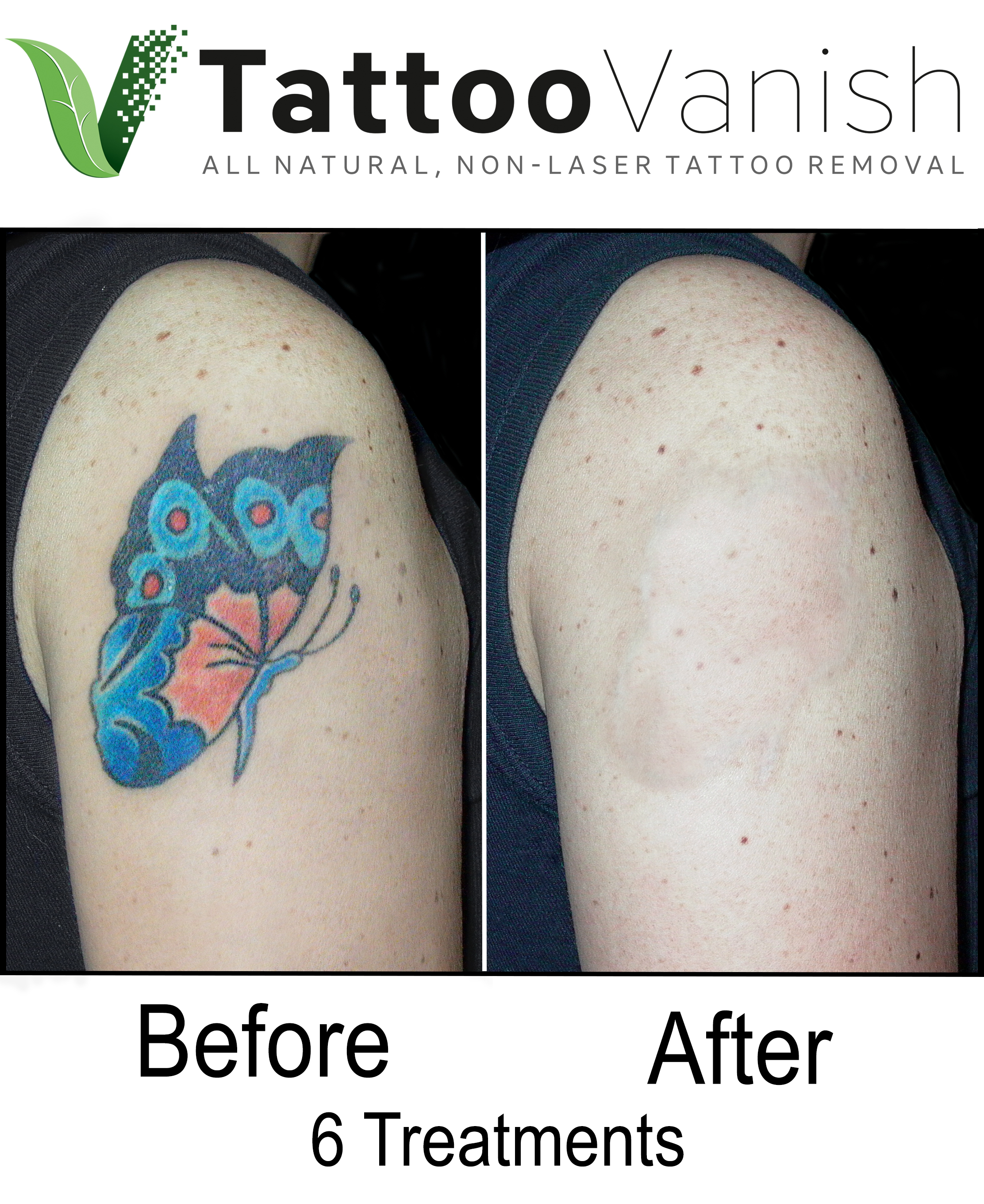 Best Tattoo Removal in Miami (28)