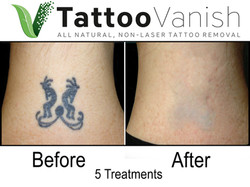 Best Tattoo Removal in Miami (12)
