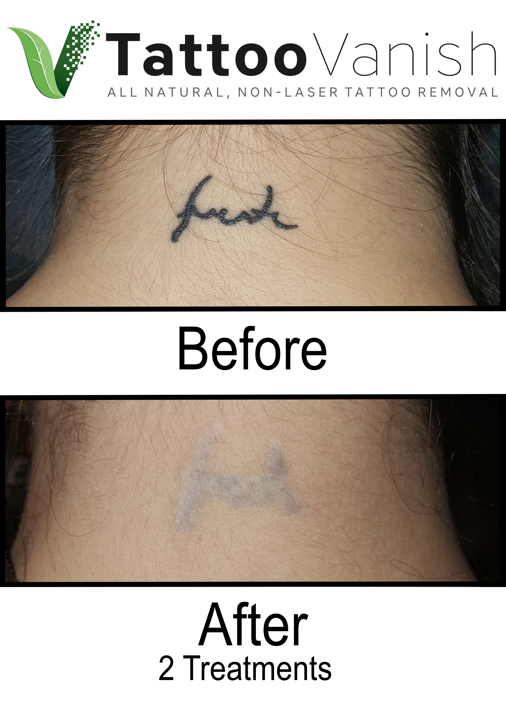Best Tattoo Removal in Miami (14)