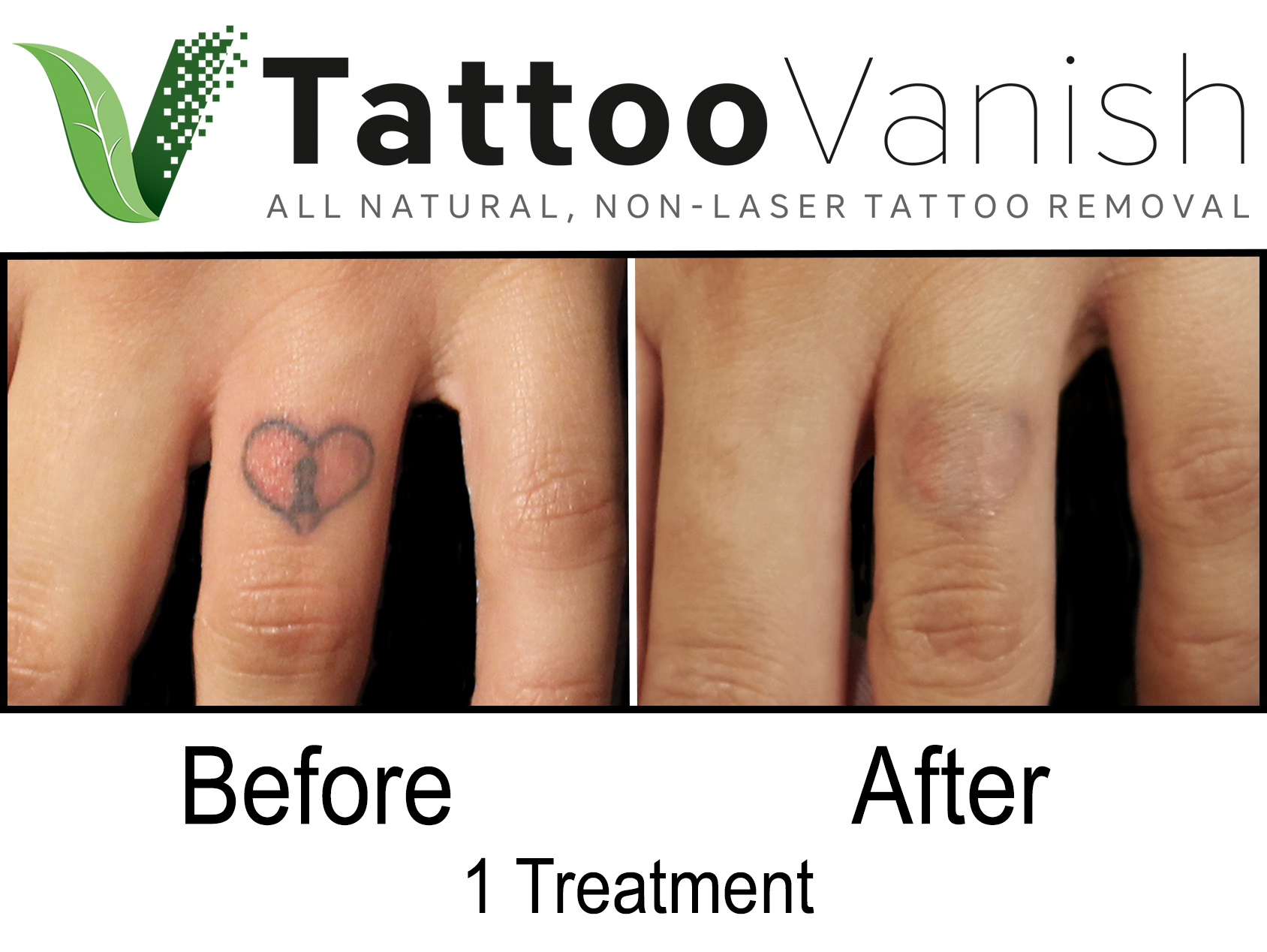 Best Tattoo Removal in Miami (48)