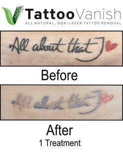 Best Tattoo Removal in Miami (31)