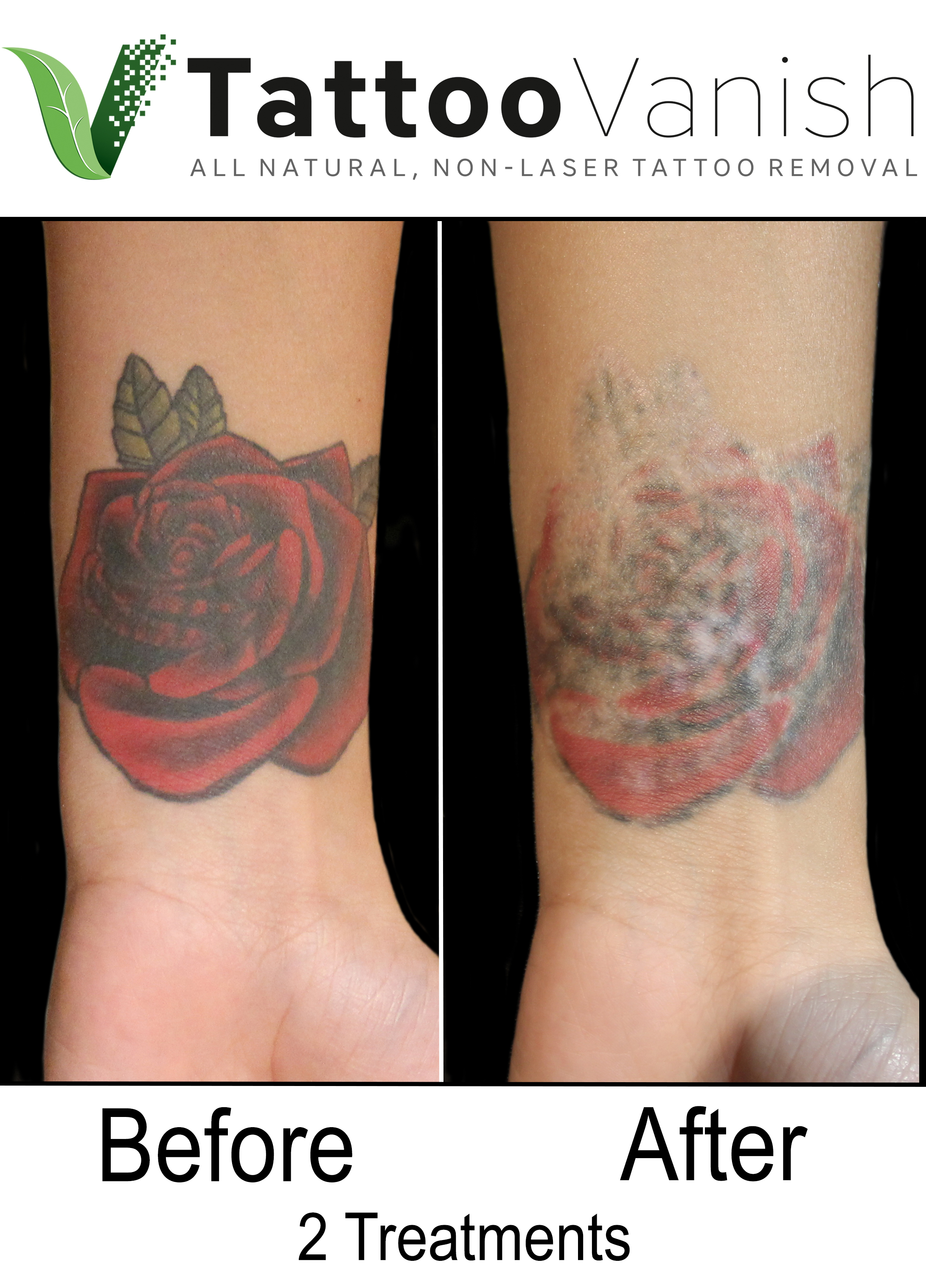 Best Tattoo Removal in Miami (38)