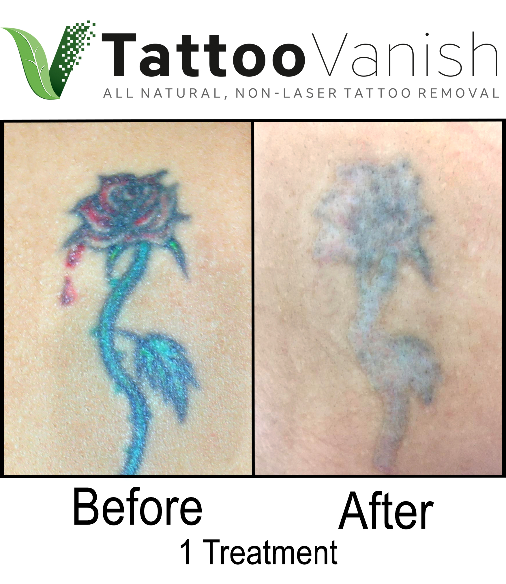 Best Tattoo Removal in Miami (11)