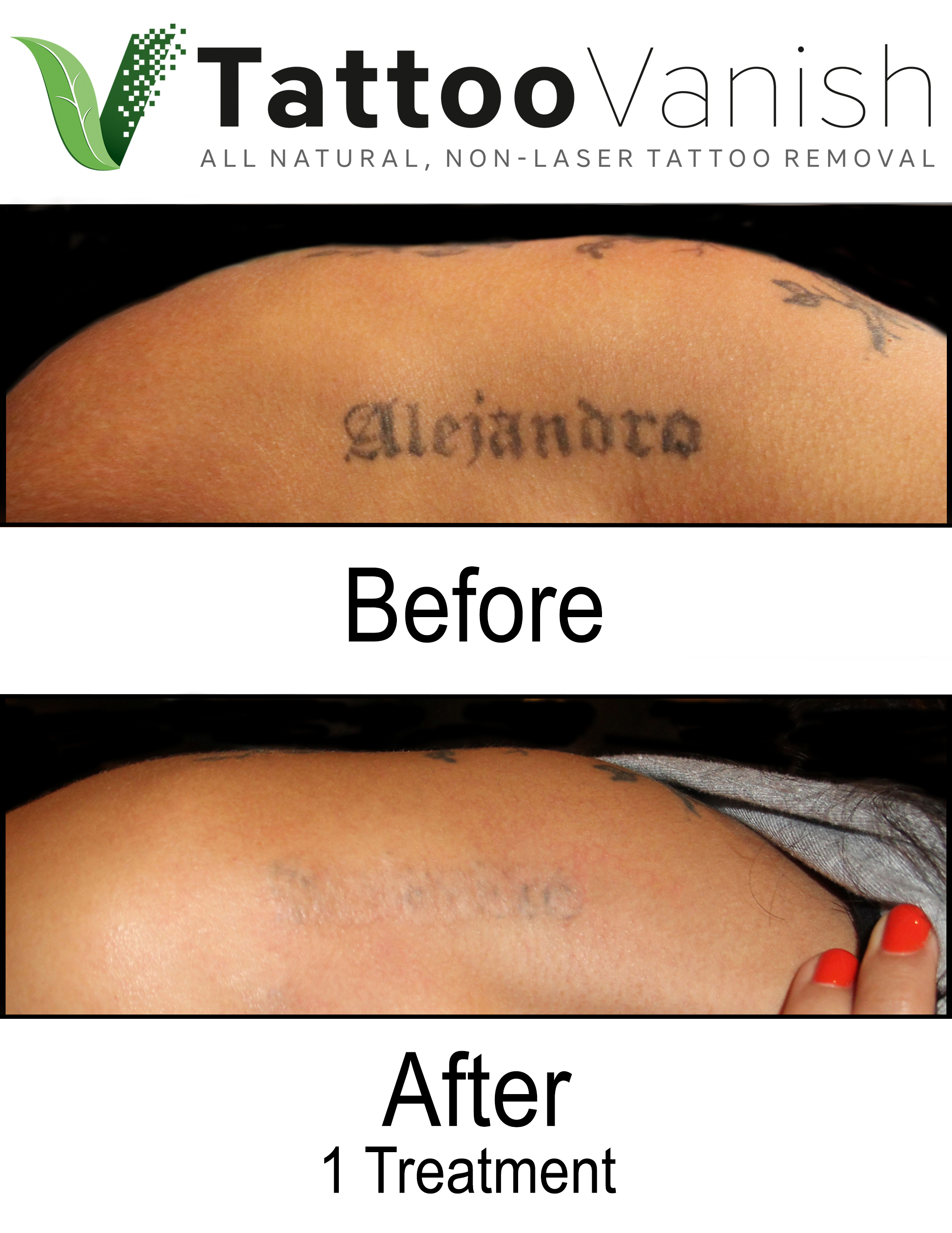 Best Tattoo Removal in Miami (41)