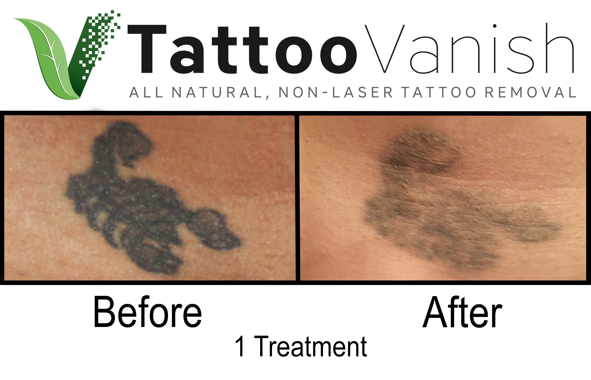 Best Tattoo Removal in Miami (19)