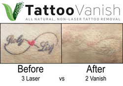 Best Tattoo Removal in Miami (29)
