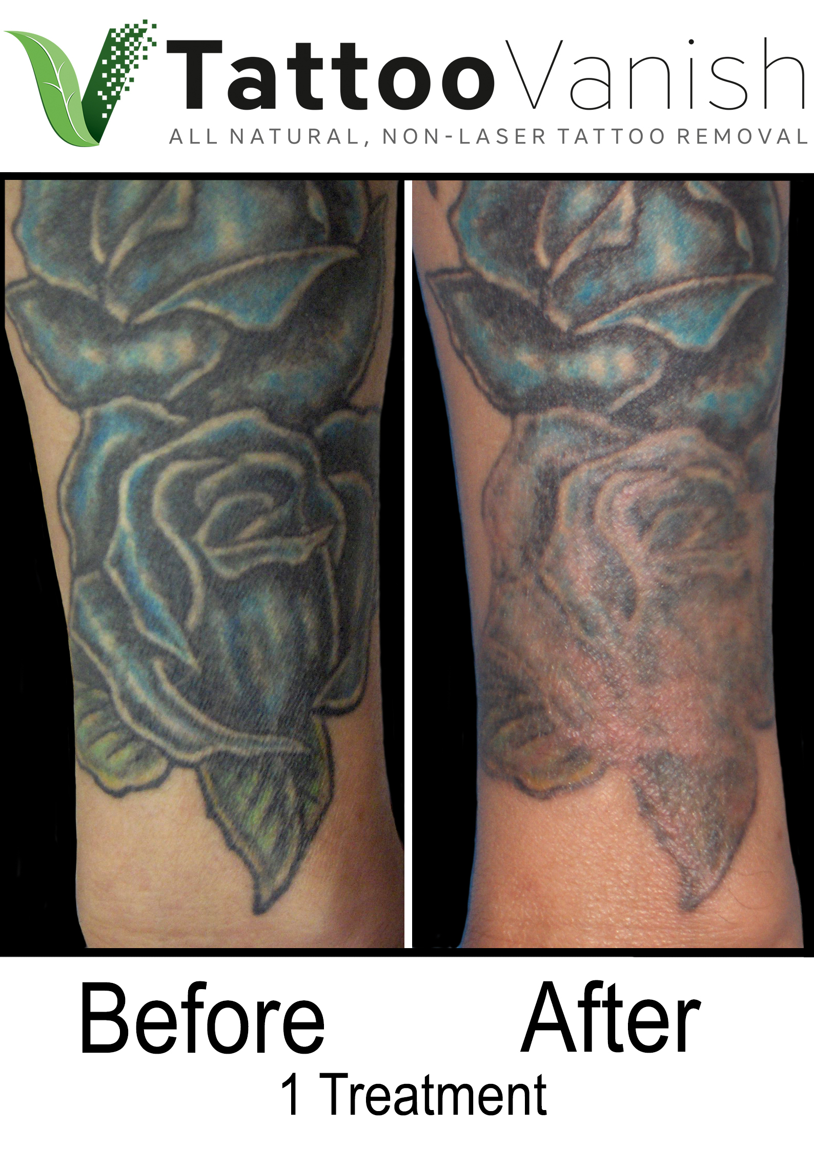 Best Tattoo Removal in Miami (18)