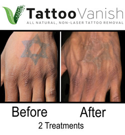 Best Tattoo Removal in Miami (32)