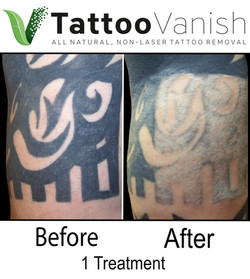 Best Tattoo Removal in Miami (50)