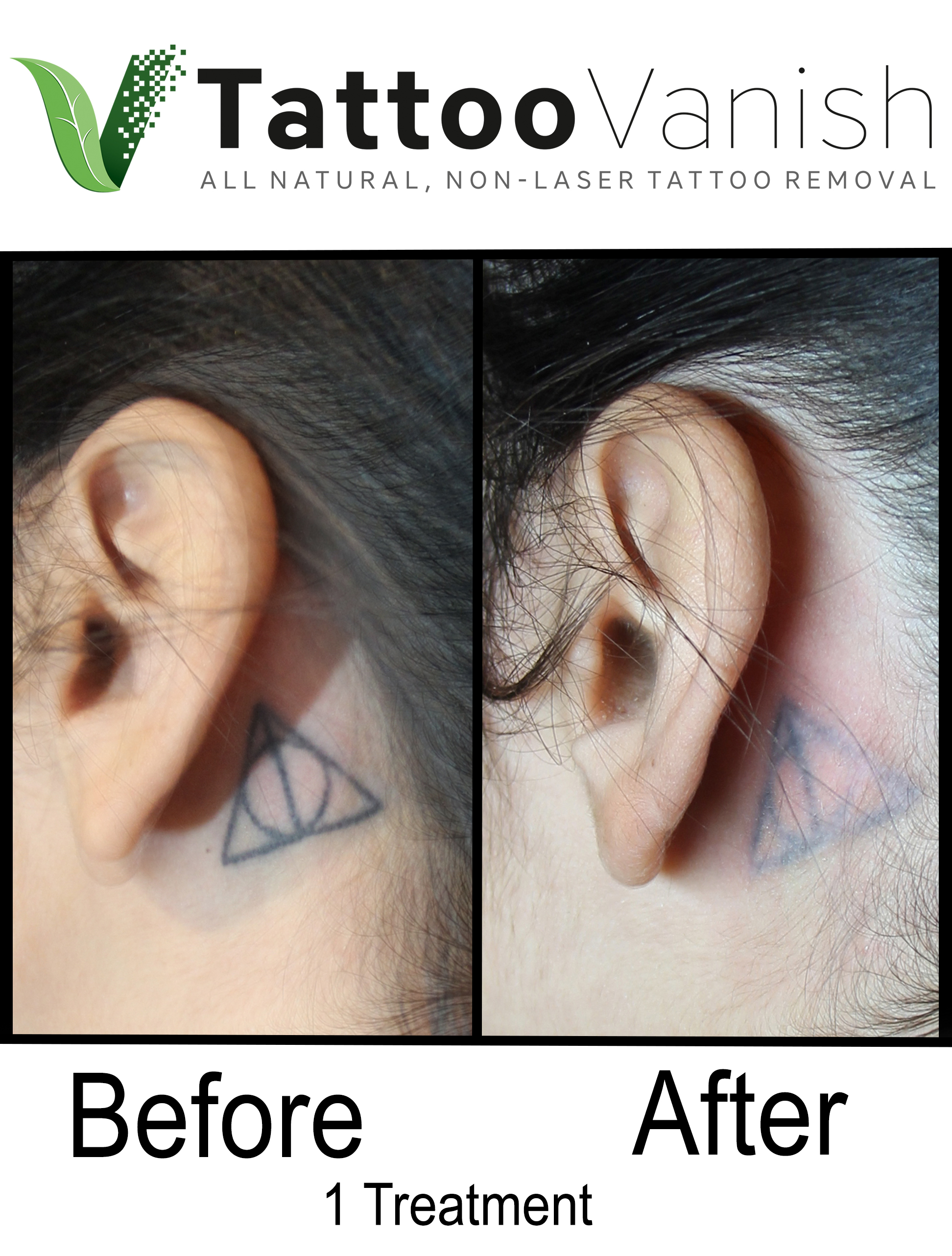 Best Tattoo Removal in Miami | First All-Natural Tattoo Removal