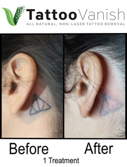 Best Tattoo Removal in Miami (22)