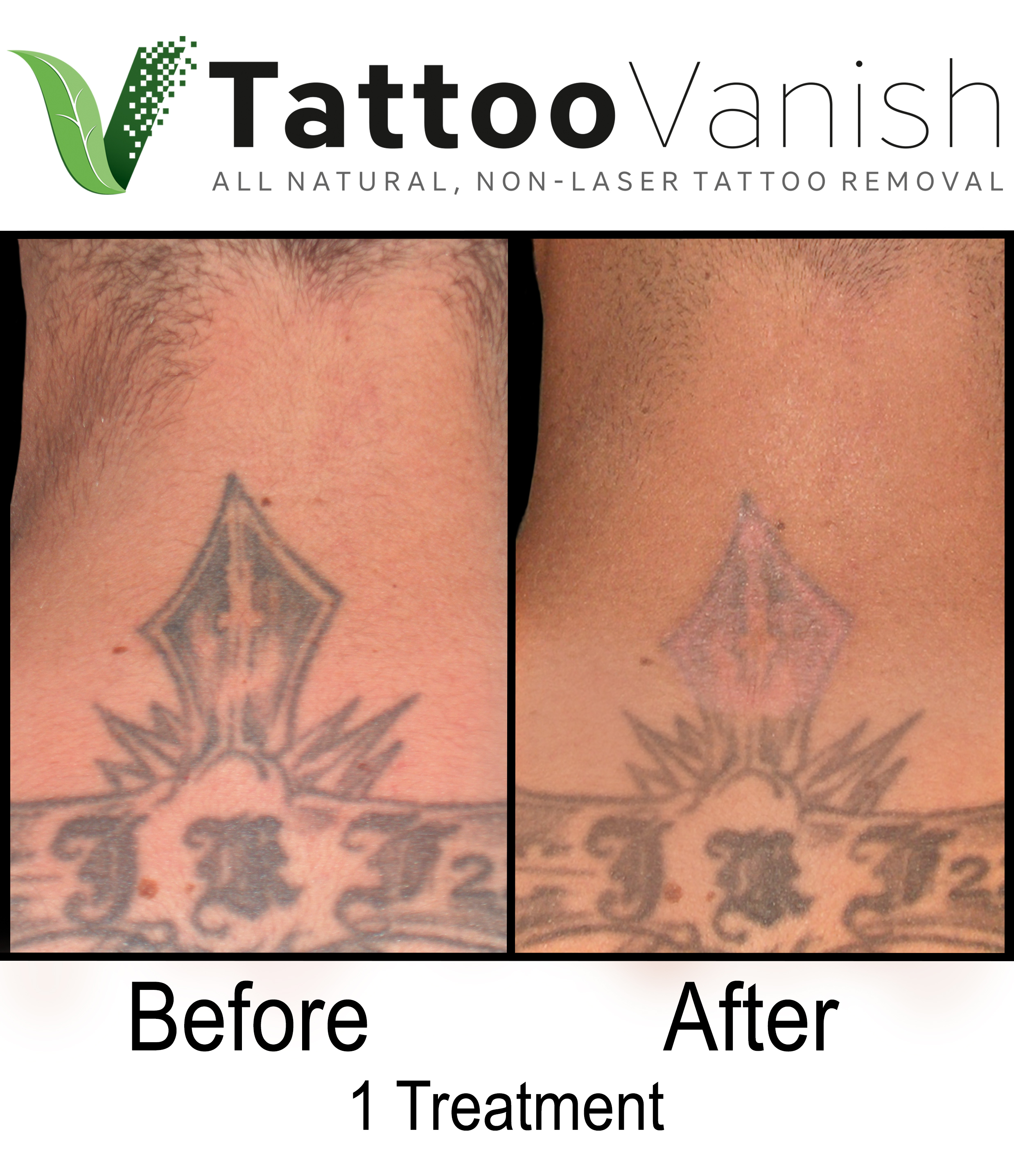 Best Tattoo Removal in Miami (42)