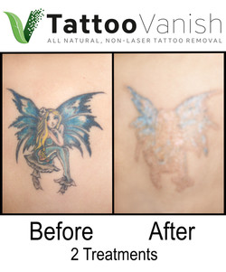 Best Tattoo Removal in Miami (39)