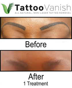 Best Tattoo Removal in Miami (45)