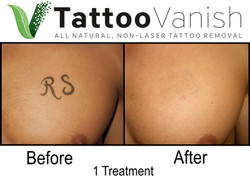 Best Tattoo Removal in Miami (49)