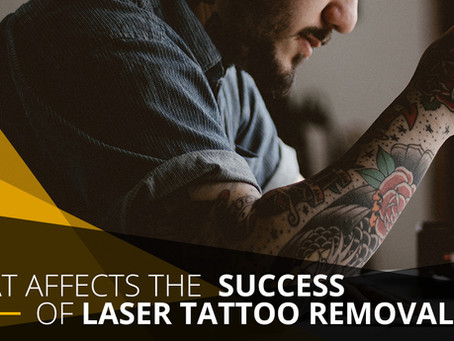 What Affects the Success of Laser Tattoo Removal?