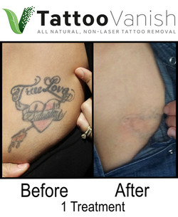 Best Tattoo Removal in Miami (37)