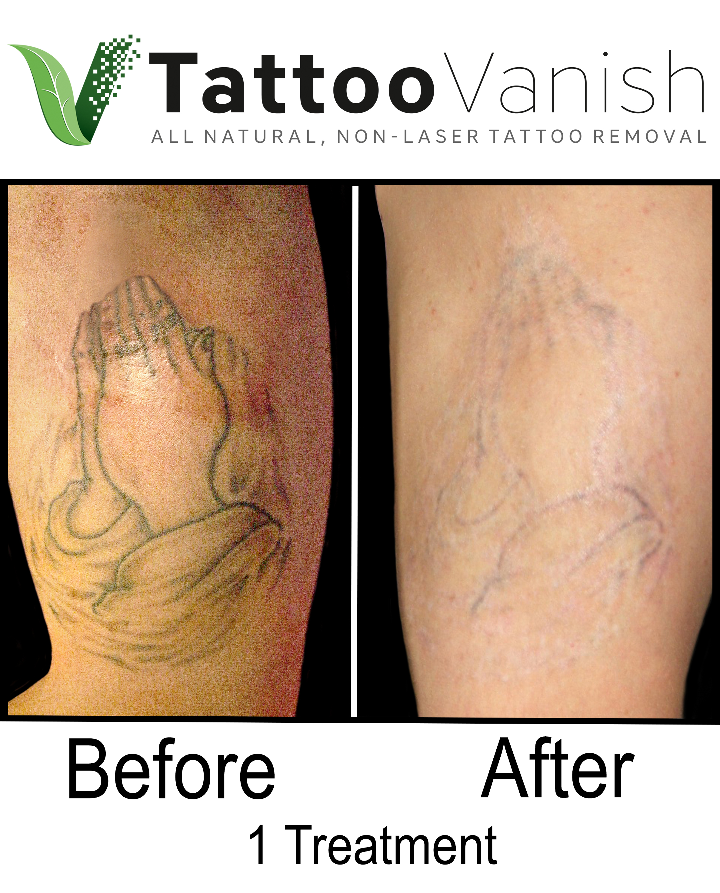 Best Tattoo Removal in Miami (26)