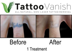Best Tattoo Removal in Miami (23)