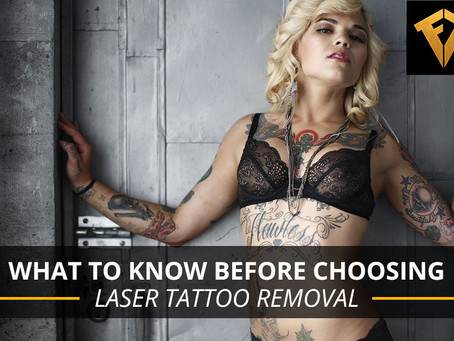 What to Know Before Choosing Laser Tattoo Removal