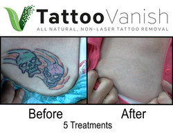 Best Tattoo Removal in Miami (34)