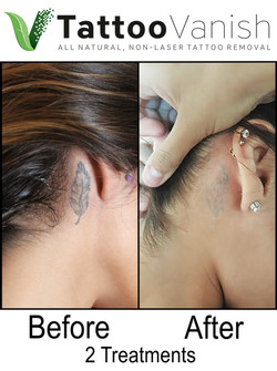 Best Tattoo Removal in Miami (46)