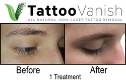 Best Tattoo Removal in Miami (13)