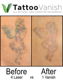 Best Tattoo Removal in Miami (24)
