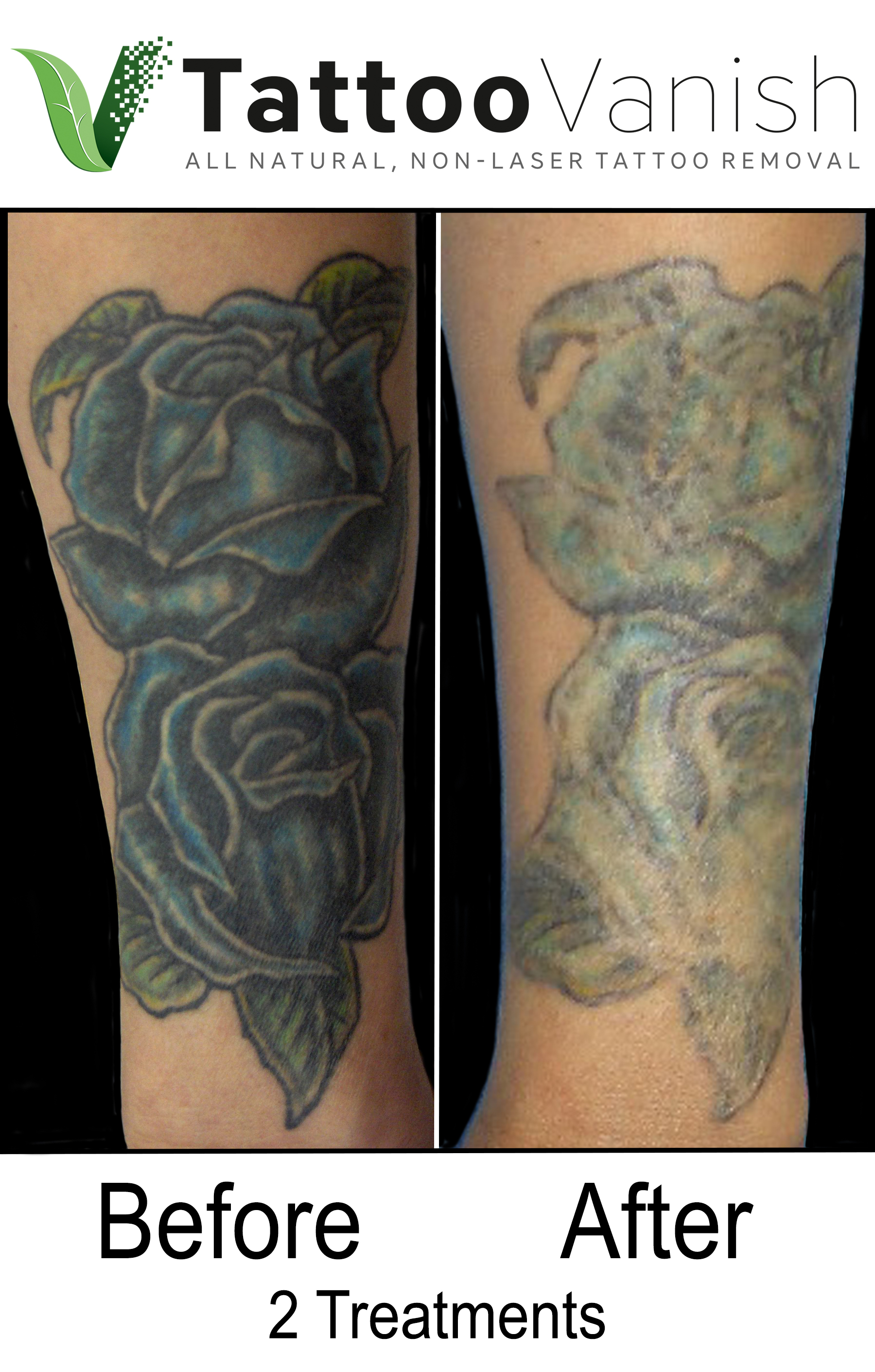 Best Tattoo Removal in Miami (15)
