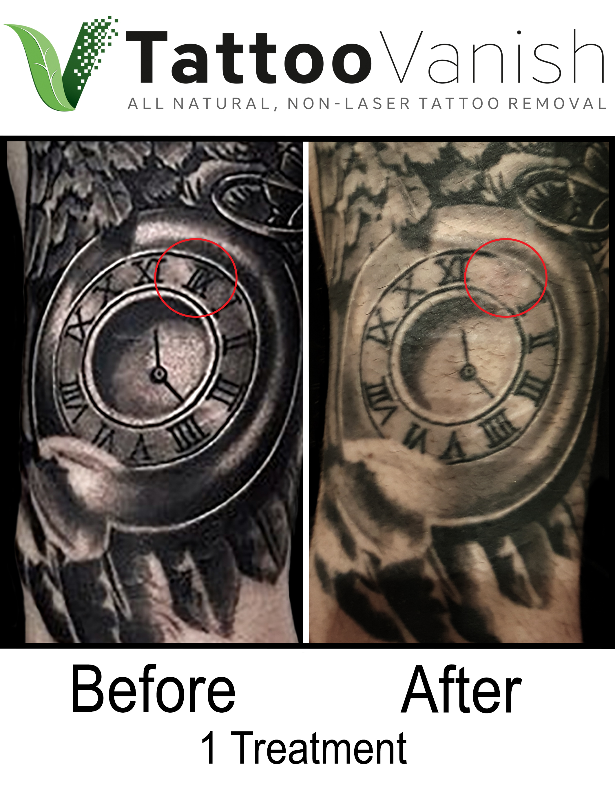 Best Tattoo Removal in Miami (40)