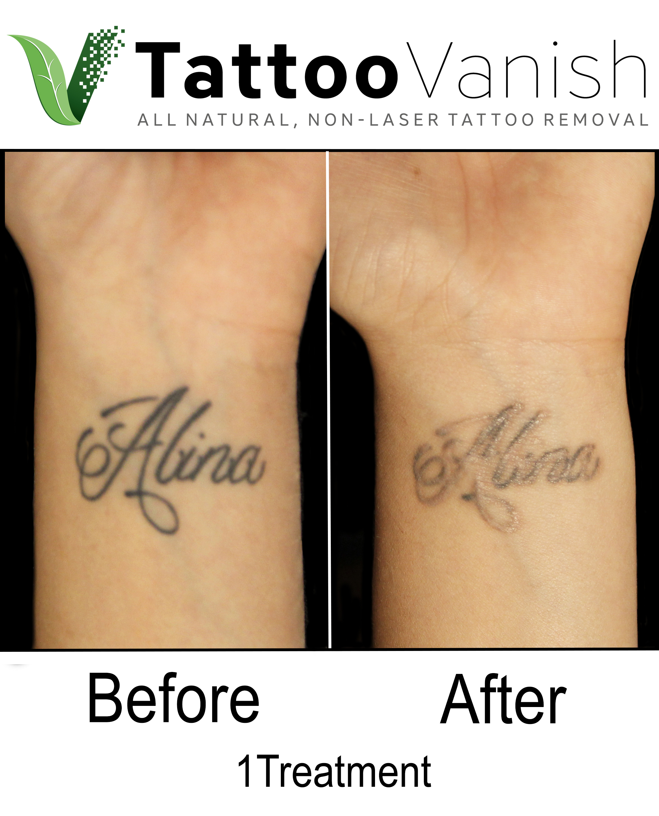 Best Tattoo Removal in Miami (47)