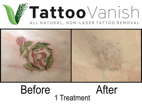 What are the Three Tattoo Removal Approaches?