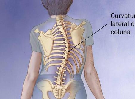 Escoliose: como o Pilates pode ajudar na correção desse desvio da coluna?