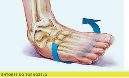 Entorse de tornozelo. Como aliviar a dor e tratar corretamente?