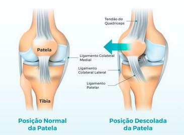 Luxação patelar e a reabilitação do joelho.