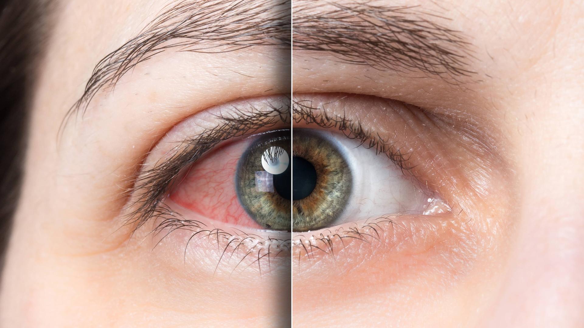 red eye and treatment prairie eye care