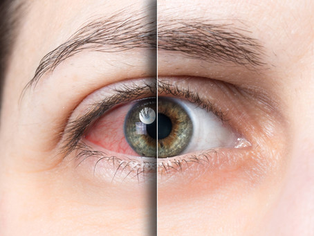 What Is Astigmatism & How Does It Affect My Vision?